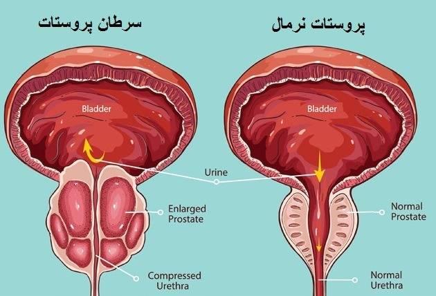 چگونه سرطان پروستات را بشناسیم و آن را درمان کنیم