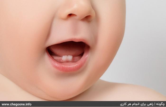 چگونه دندان درآوردن کودک را متوجه شویم