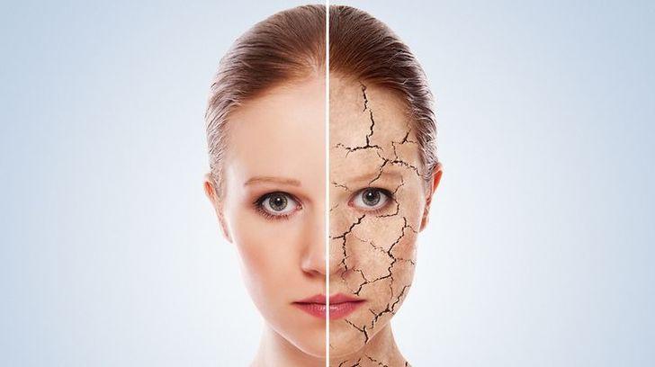 چگونه ترک های پوستی را از بین ببریم