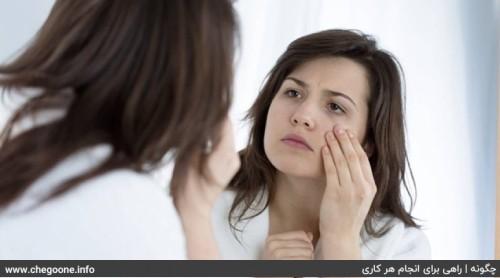 چگونه سیاهی دور چشم را درمان کنیم